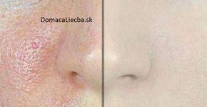 Veľké póry na pokožke trápia zvyčajne ľudí s mastným typom pleti. Namiesto škodlivej kozmetiky použite tieto overené prírodné spôsoby.