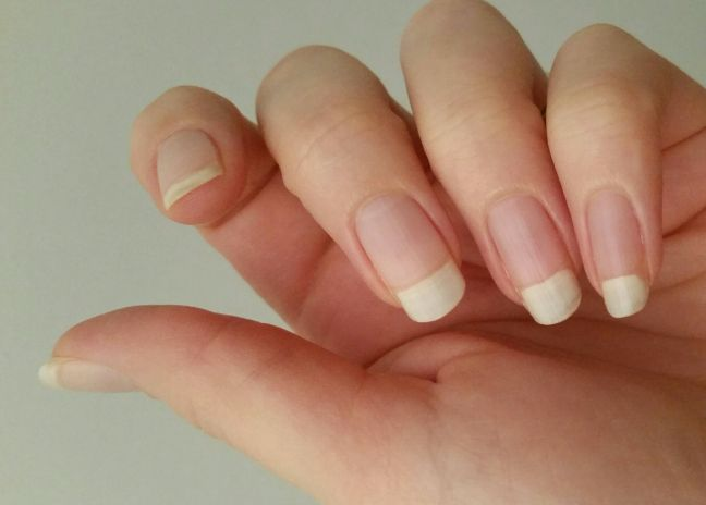 Peeling Nails - What Works, What Doesn't