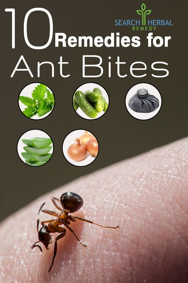10 Remedies for Ant Bites