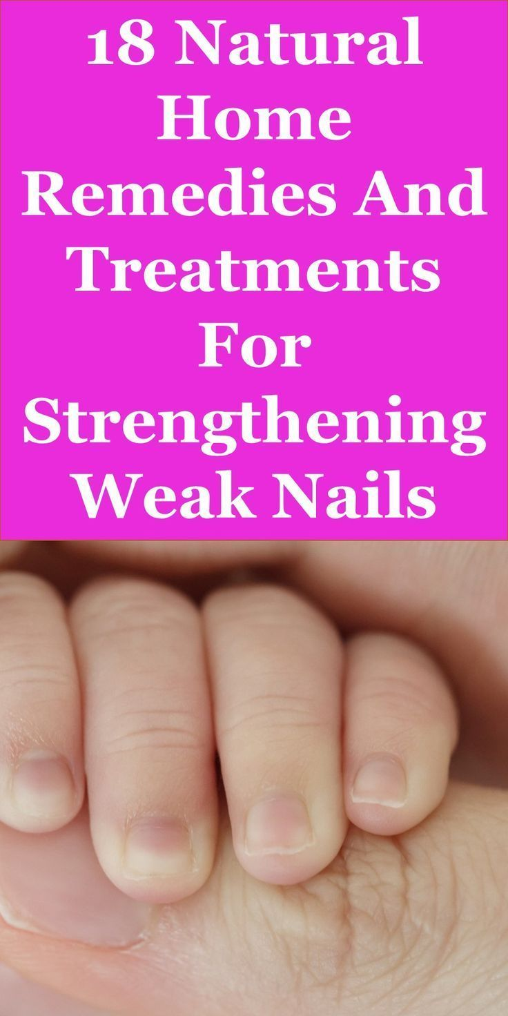 This Article Discusses Ideas On The Following; Hypothyroidism Nails Pictures, Thyroid Disease Fingernails, Hyperthyroid Nails, Hypothyroidism Lunula, Hypothyroidism Nail Ridges Pictures, Lunula Only On My Thumbs, Can Thyroid Problems Cause Nail Problems?, Hypothyroidism And Foot Pain, Etc.