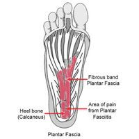 Plantar Fasciitis: Symptoms, Causes, Prevention and Treatment   Runner's World