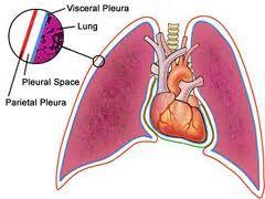 Mesothelioma Pleural Effusion Types