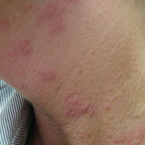 Is Something Giving You Hives? What You Need to Do: Overview of Causes of Hives
