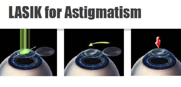 Lasik for astigmatism cost safety how to relief