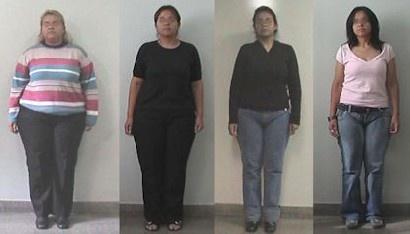 Banda Gastrica, antes y despues. Cirugia realizada en Cordoba, Argentina por especialistas de Sublimis.