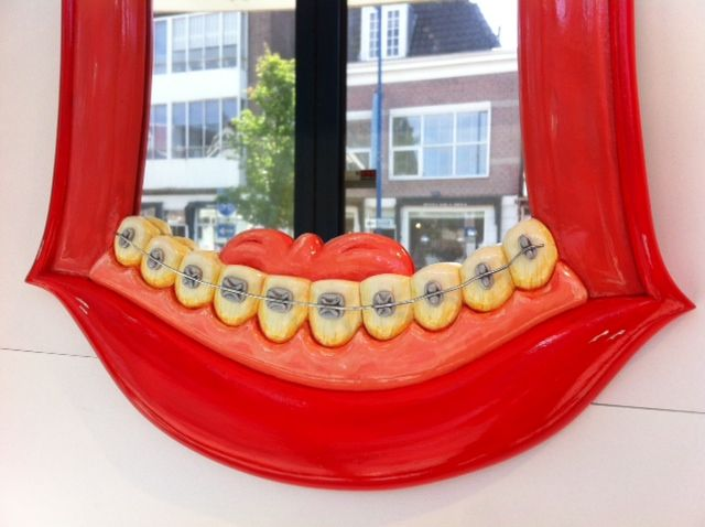The lower set of teeth and braces...