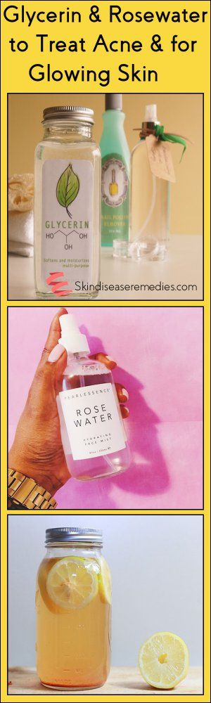 Use glycerin and rosewater for face, to treat acne and for skin lightening. Try these 12 methods of rosewater and glycerin for oily skin. Add lemon drops
