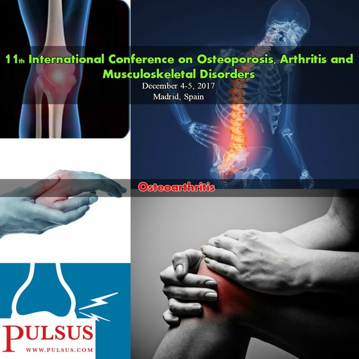 #Osteoarthritis is a joint disease caused due to breakdown of joint #cartilage and the underlying bone. Causes are abnormal joint or limb development, previous joint injury, and genetic factors. Risk is high in overweight people, those who have one leg of a different length