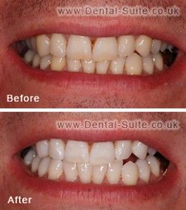 Yellow Teeth - Visit http://www.pricecanvas.com/health/teeth-whitening-products/ For Teeth Whitening Products.