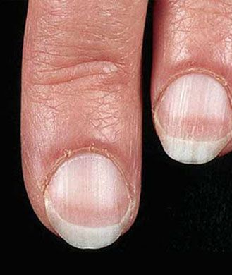 """Pale nails---problem isn't so black and white when it comes to white nails. If your fingernail beds are looking a little ghostly, you may have anemia, a blood disorder characterized by a low red blood cell count. """"Anemia resulting from low levels of iron can lead to inadequate oxygen in the blood, which causes the skin and tissues to become pale, particularly the tissues under the nails,"""" says Shilpi Agarwal, M.D.,""""--""""-----Pinned by AnnacabellaThe"""