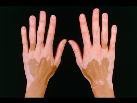 Vitiligo Photos