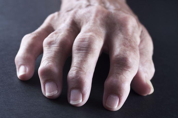 What Are Rheumatoid Nodules?