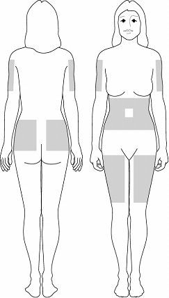 subcutaneous injection sites - Google Search