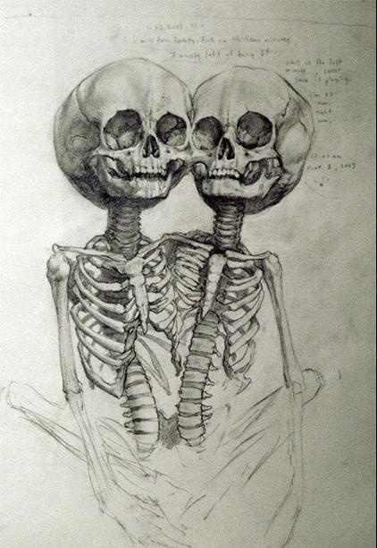 conjoined twins, grotesque yet beautiful