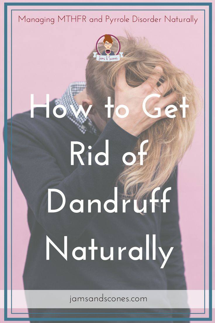 How to get rid of dandruff naturally - check out these 6 easy tips for getting rid of dandruff. You can find most of them in your pantry. Natural ways to get rid of dandruff.