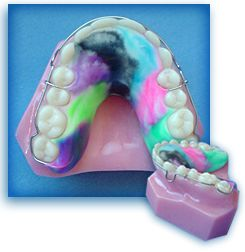 The retainer is a necessary mechanism that reinforces the results of the braces after they have been taken off.