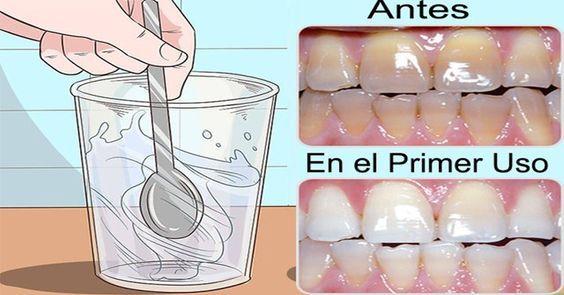 Solo use una gota de este remedio y blanqueo mis dientes, elimino el sarro, hongos, dolores de garganta, mal aliento y todo eso en solo 3 usos. El peróxido
