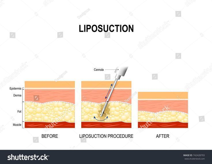 liposuction procedure. Before and after. fat model… – – #fat #Liposuction #mod…