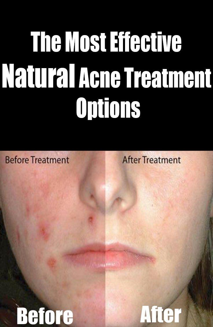 acne adult effective treatment