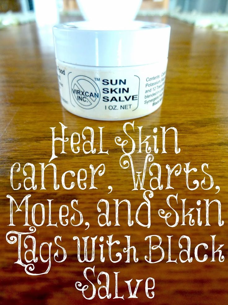 This product is amazing! We have been using it for many years to get rid of warts, moles, and skin cancers with great success.
