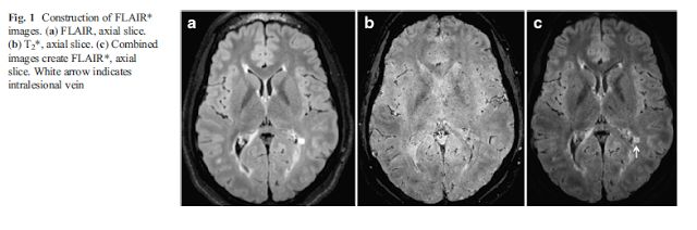 DrK the Star with abit of Flair   Campion T Smith RJ Altmann DR Brito GC Turner BP Evanson J George IC Sati P Reich DS Miquel ME Schmierer K. FLAIR to visualize veins in white matter lesions: A new tool for the diagnosis of multiple sclerosis? Eur Radiol. 2017. doi: 10.1007/s00330-017-4822-z. OBJECTIVE:To explore the potential of a post-processing technique combining FLAIR and T2 (FLAIR) to distinguish between lesions caused by multiple sclerosis (MS) from cerebral small vessel disease (SVD)…