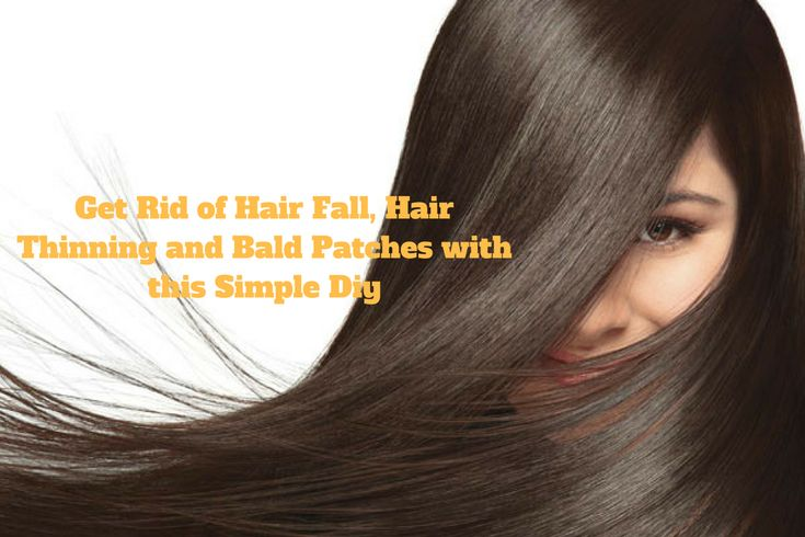 Get Rid of Hair Fall, Hair Thinning and Bald Patches with this Simple Diy - Beauty and Blush