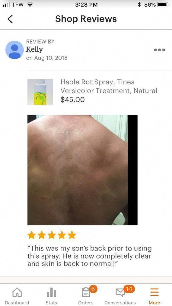 natural skin care recipes for eczema #naturalskincarerecipesforeczema - #E ...  -  Hautpflege-Rezepte