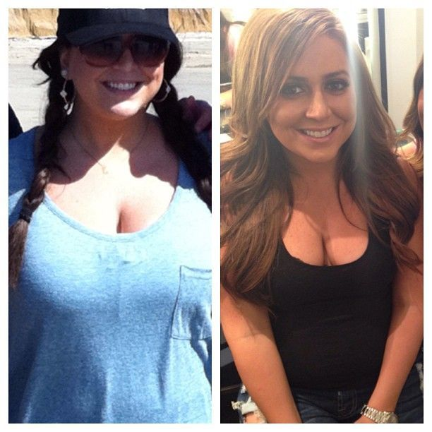 Lauren Manzo Reveals Before and After Surgery Pics Lauren Manzo Reveals Before and After Surgery Pics