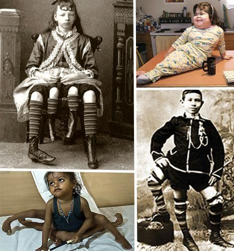 oddities | Gallery Of Human Oddities » Popular Fidelity » Unusual Stuff