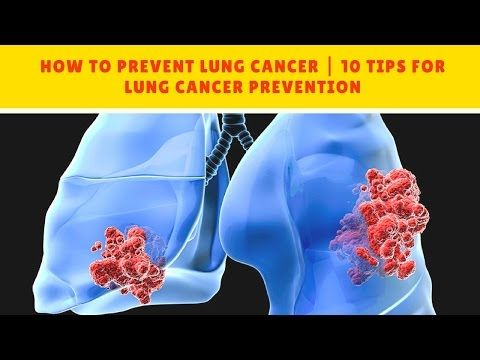 HOW TO PREVENT LUNG CANCER | 10 Tips for Lung Cancer Prevention - WATCH THE VIDEO.    *** how to prevent lung cancer after quitting smoking ***   HOW TO PREVENT LUNG CANCER | 10 Tips for Lung Cancer Prevention Smoking is the leading cause of lung cancer, responsible for 80 to 90 percent of lung cancers. It is never too late to quit smoking. For those who have been diagnosed...
