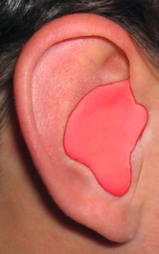 Radians CEP001-R Custom Molded Earplugs (Red)