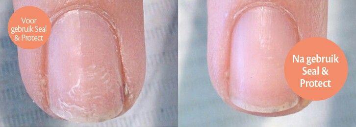 Mooi nieuw product in mijn praktijk : #Magnetic Seal & Protect, voor stevigere nagels! Goede #Basis