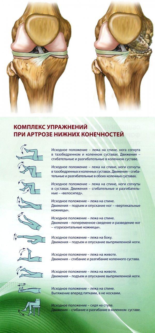 фотографию гимнастика для тазобедренного сустава при артрозе картинки глаз или