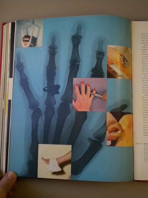 Scope Magazine Womans Hand X-Ray