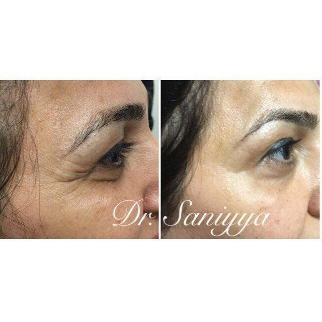 CROWS FEET - subtle doses of botox to get rid of lines around the eyes, for a yo...