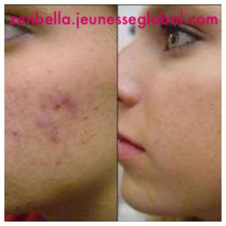 Serum corrects acne