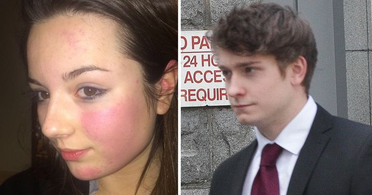 Selfie shows bruised face of teen Emily Drouet who committed suicide after suffering domestic violence | Metro News http://metro.co.uk/2017/05/28/family-release-selfie-showing-teenagers-bruised-face-before-she-killed-herself-6668158/?utm_campaign=crowdfire&utm_content=crowdfire&utm_medium=social&utm_source=pinterest
