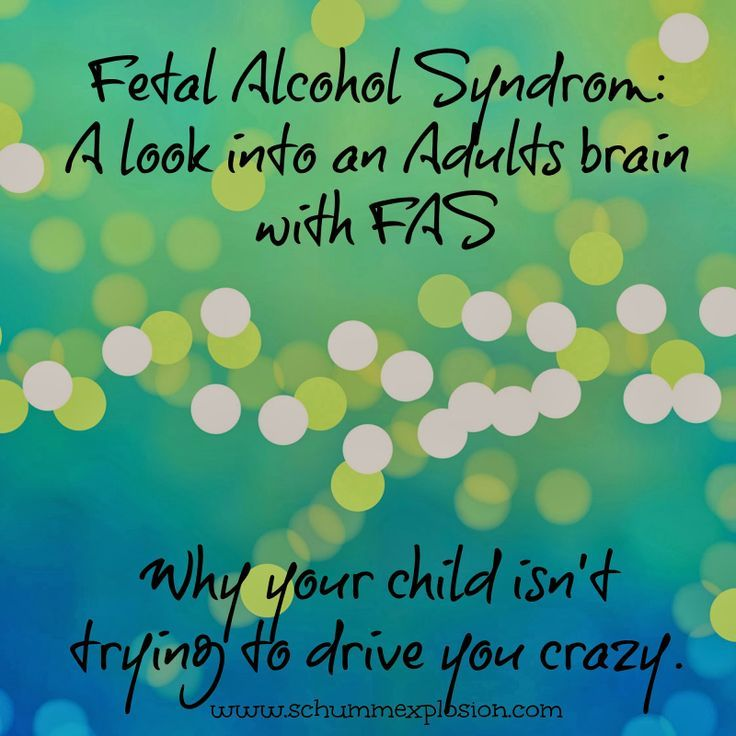 understanding fetal alcohol syndrome fas Teaching students with fetal alcohol understanding the needs of the fas/e student is about to teach a student with fetal alcohol syndrome or fetal alcohol effect.