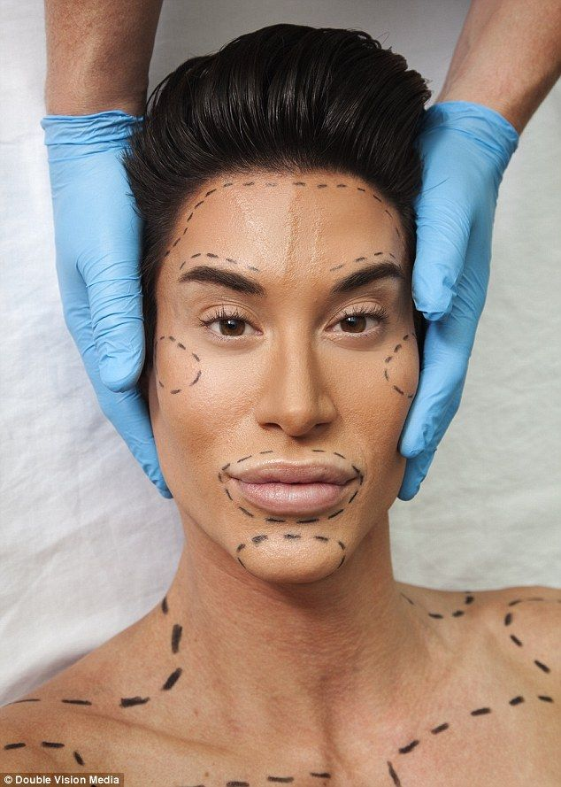 Human Ken doll risks blindness to have his forehead veins removed. He wants to look 100% plastic. He's had 190 surgeries