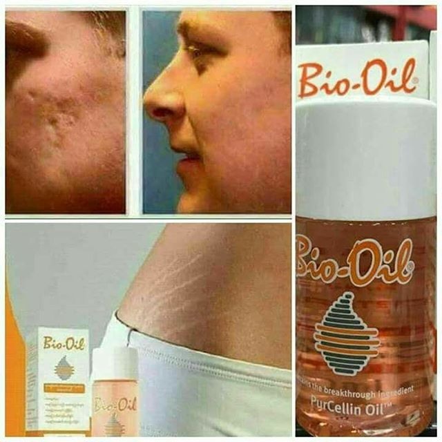 Pin By Fashion Ideas On Tota In 2020 Beauty Care Bio Oil Oils