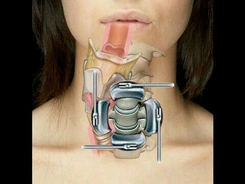 17 Best Images About Cervical Spine Surgery On Pinterest