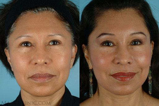 Eyelid Surgery San Francisco The Maas Clinic Aesthetic