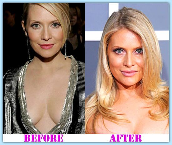 Question emily procter plastic surgery before after for