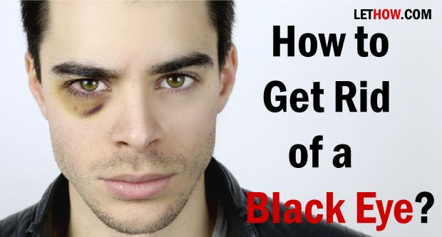 How to get rid of a black eye? Home remedies for black eye treatment. Heal black eye naturally and fast. Ways to prevent black eye, Cure black eye quickly.