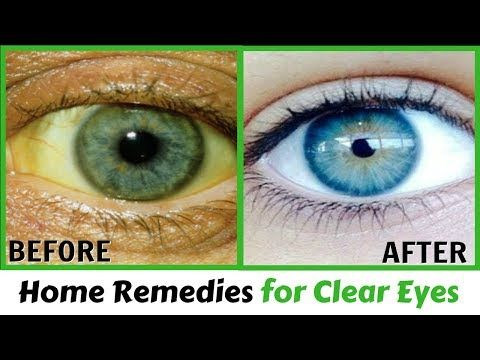 Eye Wash Solution Home Remedy | Home Remedies for Clear Eyes - YouTube