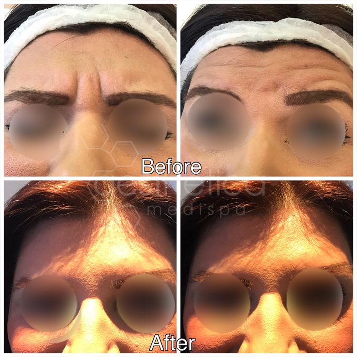 Why do clients consistently choose Aesthetica?.. RESULTS.  www.aesthetica-medispa.co.uk  #botoxbirmingham  #allerganBirmingham #lineandwrinkletreatmentbirmingham #drlouisefitzpatrick #longlasting