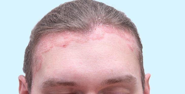 زراعة الشعر للنساء Hair Transplant Before After Photo Hair
