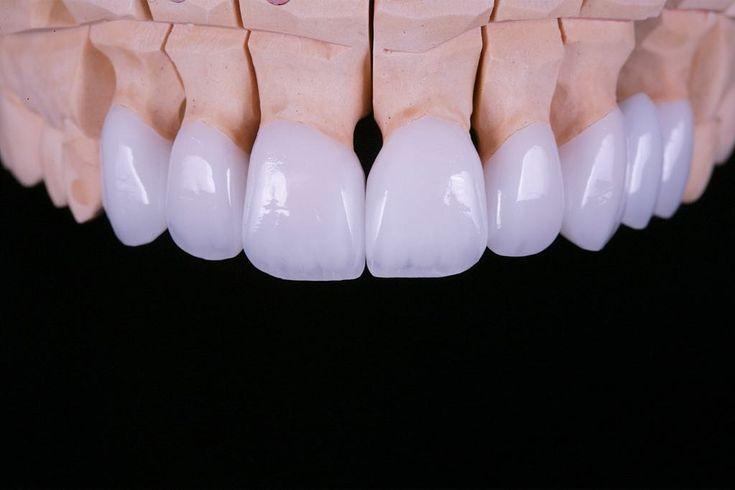 Anterior dental crowns dental crowns dental ceramics