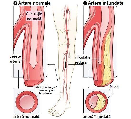 Artere ÎNFUNDATE – simptome, cauze și alimente care ajută