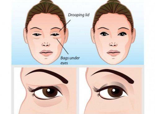 Solve Your Sagging Eyelids Problem Naturally In 2 Minutes Everyone wants to retain a healthy, youthful appearance, but over time, the aging